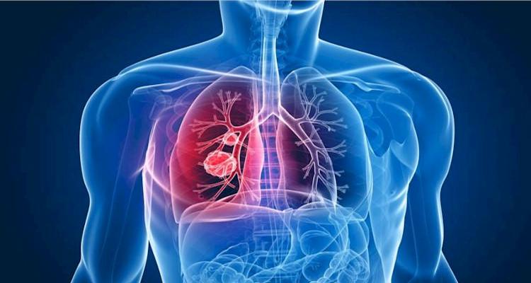 biblioteca virtual enfermagem - tuberculose