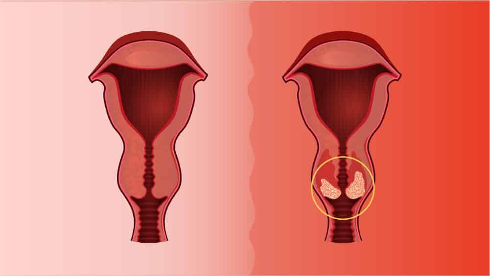 Detecção Precoce e Prevenção do Câncer de Colo Uterino: Saberes e Práticas Educativas