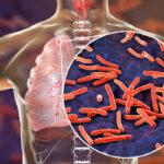 Passos e Descompassos no Processo de Cuidado aos Portadores de Tuberculose na Atenção Primária